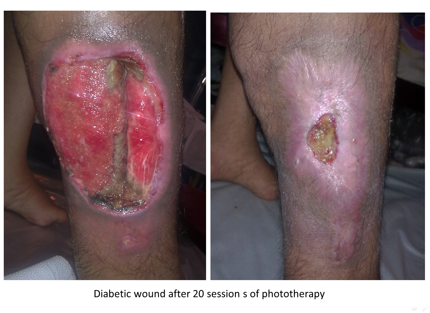 Laser Therapy In Wound Healing Canadian Optic Amp Laser
